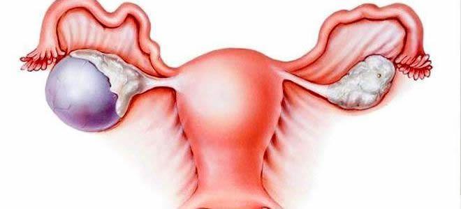 Quists d'ovari símptomes tractament