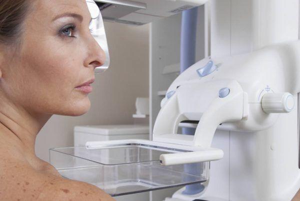 Mamografía anual Córdoba