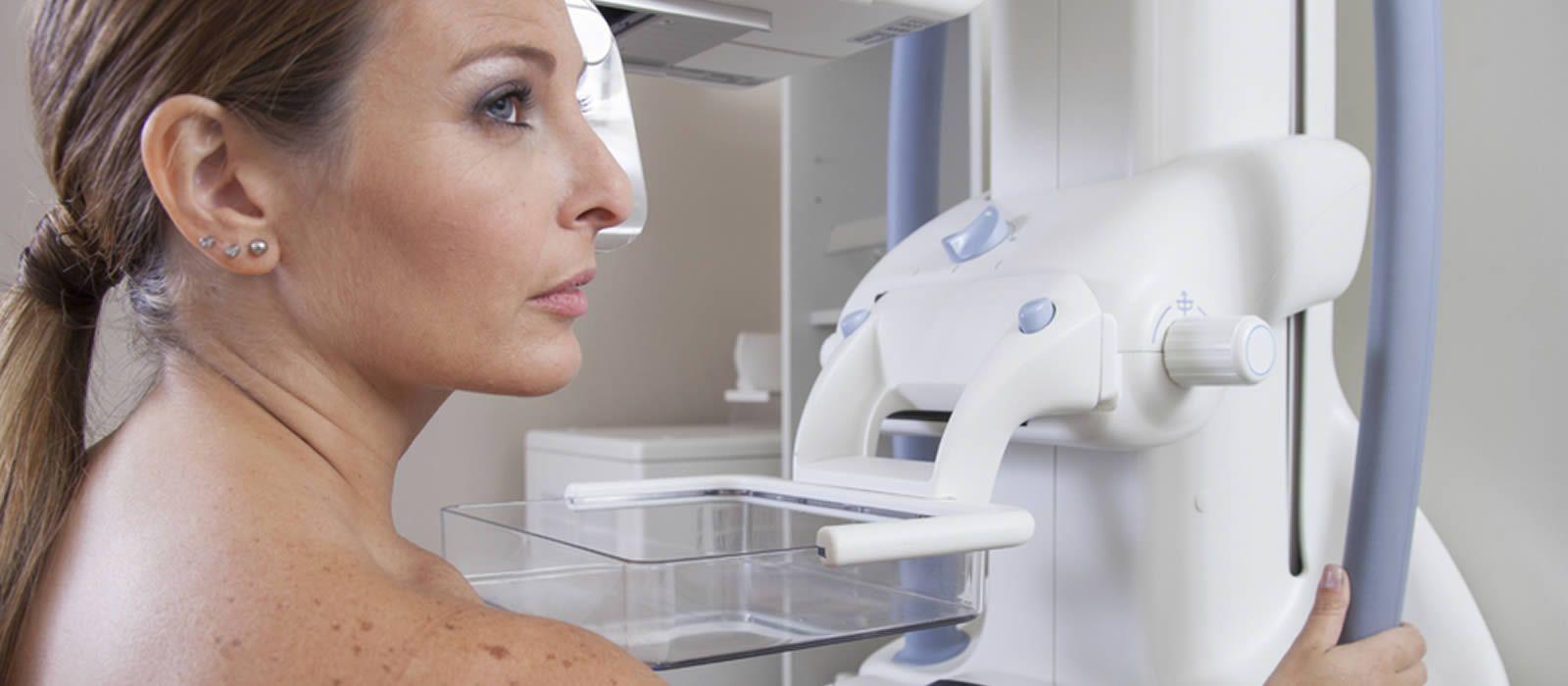 Mamografía: cuándo es el momento de comenzar a hacerla anualmente