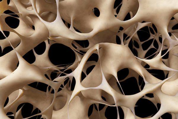 Osteoporosis Córdoba