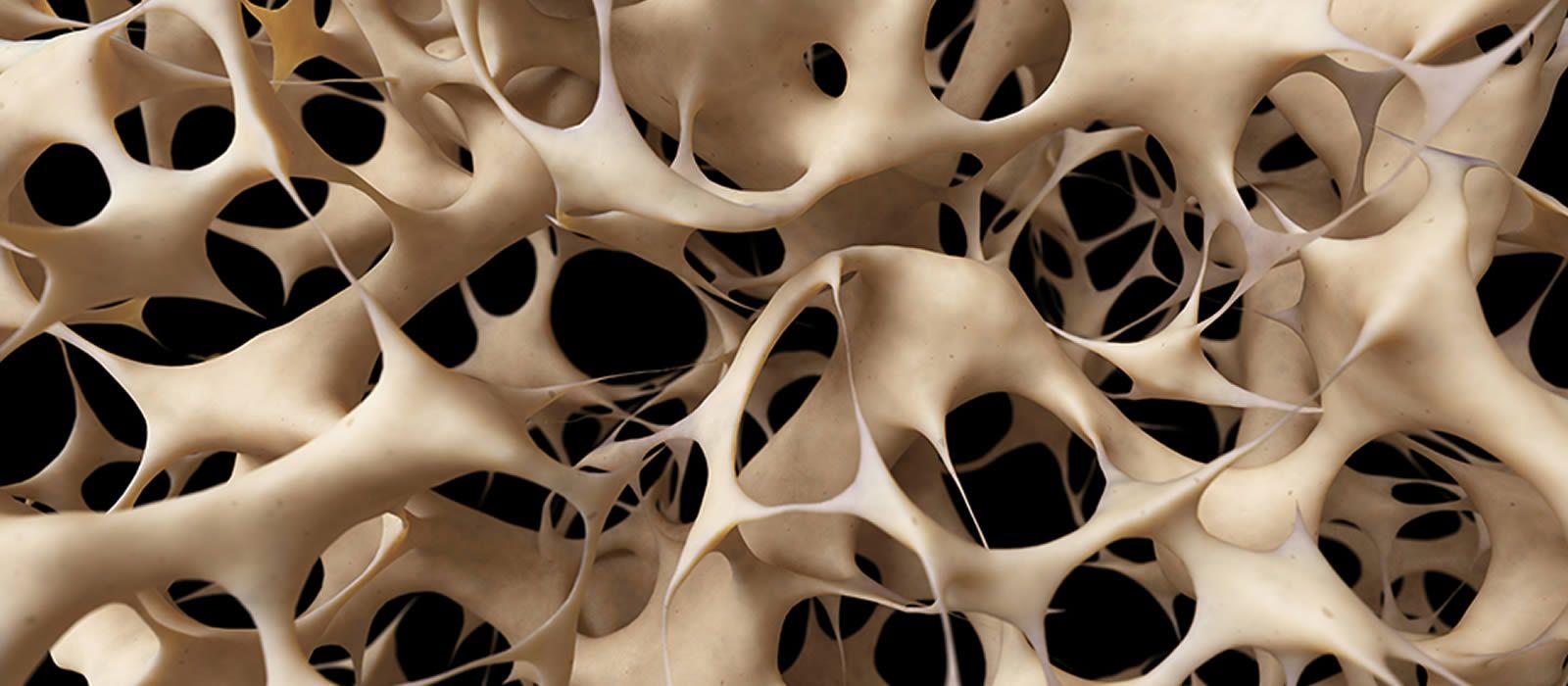 Osteoporosis y salud femenina: síntomas y prevención